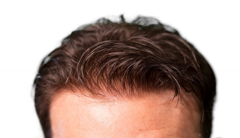 Men's Hair Loss Solutions, World Hair Institute